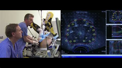4D Brachytherapy The Patients Film - Prostate Cancer