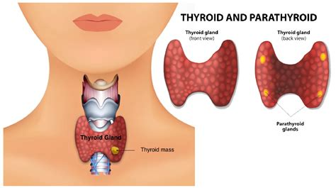 Thyroid Enlargement and Difficulty Swallowing in Fort